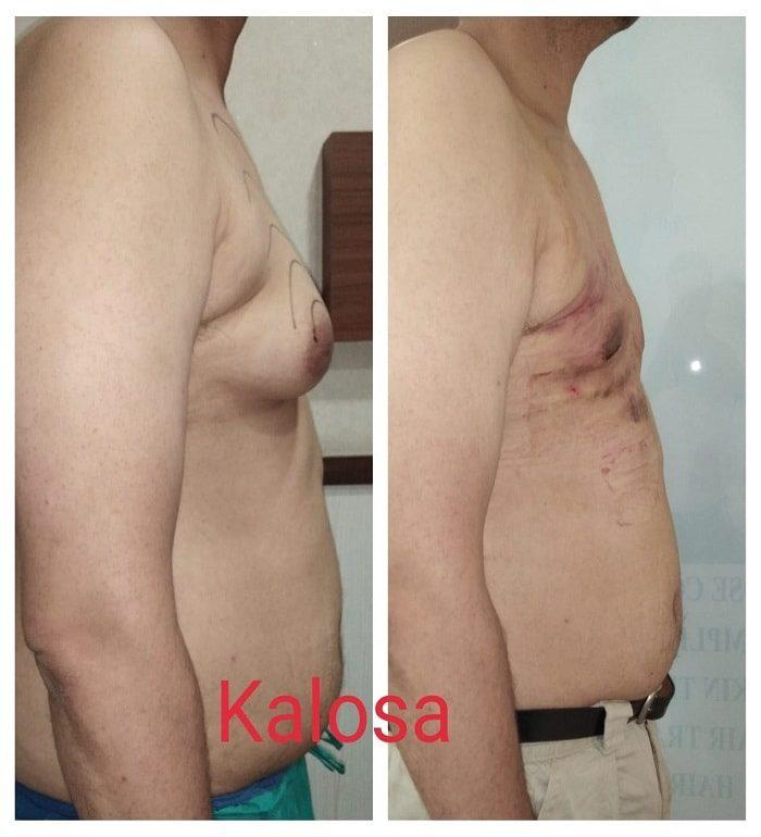 gynecomastia-surgery-in-gurgaon.jpg