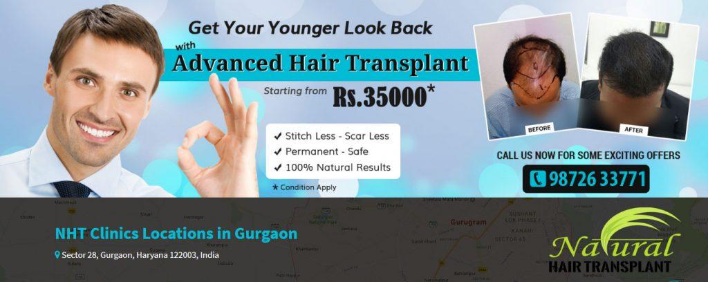 Hair transplant in Gurgaon.jpg