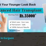 Hair transplant in Gurgaon.jpg